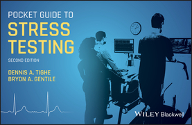 Pocket Guide to Stress Testing