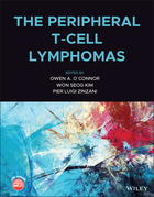 The Peripheral T-Cell Lymphomas