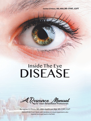 Inside the Eye Disease Just the Facts