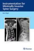 Instrumentation for Minimally Invasive Spine Surgery