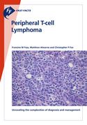Fast Facts: Peripheral T-cell Lymphoma