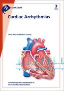 Fast Facts: Cardiac Arrhythmias