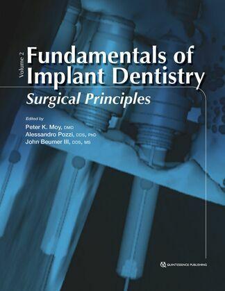 Fundamentals of Implant Dentistry, Volume II