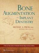 Bone Augmentation in Implant Dentistry