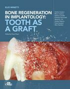 Bone regeneration in implantology: tooth as a graft