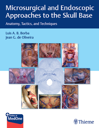 Microsurgical and Endoscopic Approaches to the Skull Base