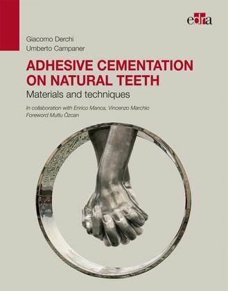 Adhesive cementation on natural teeth