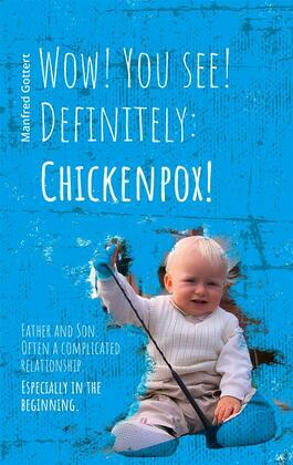 Wow! You see! Definitely: Chickenpox!