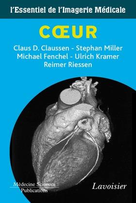 L'essentiel de l'imagerie médicale : Cœur